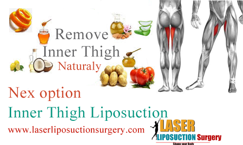 inner thigh liposuction