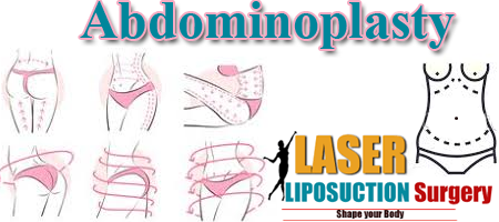 abdominoplasty - laser liposuctionsurgery