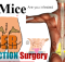 back mice - laser liposuction surgery