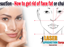 Cheek Liposuction - how to get rid of face fat or chubby cheeks