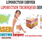 Liposuction Denver Cost Technique