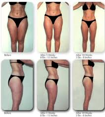 Laser Liposuction Surgery Gives Maximum Results At Minimum Risk